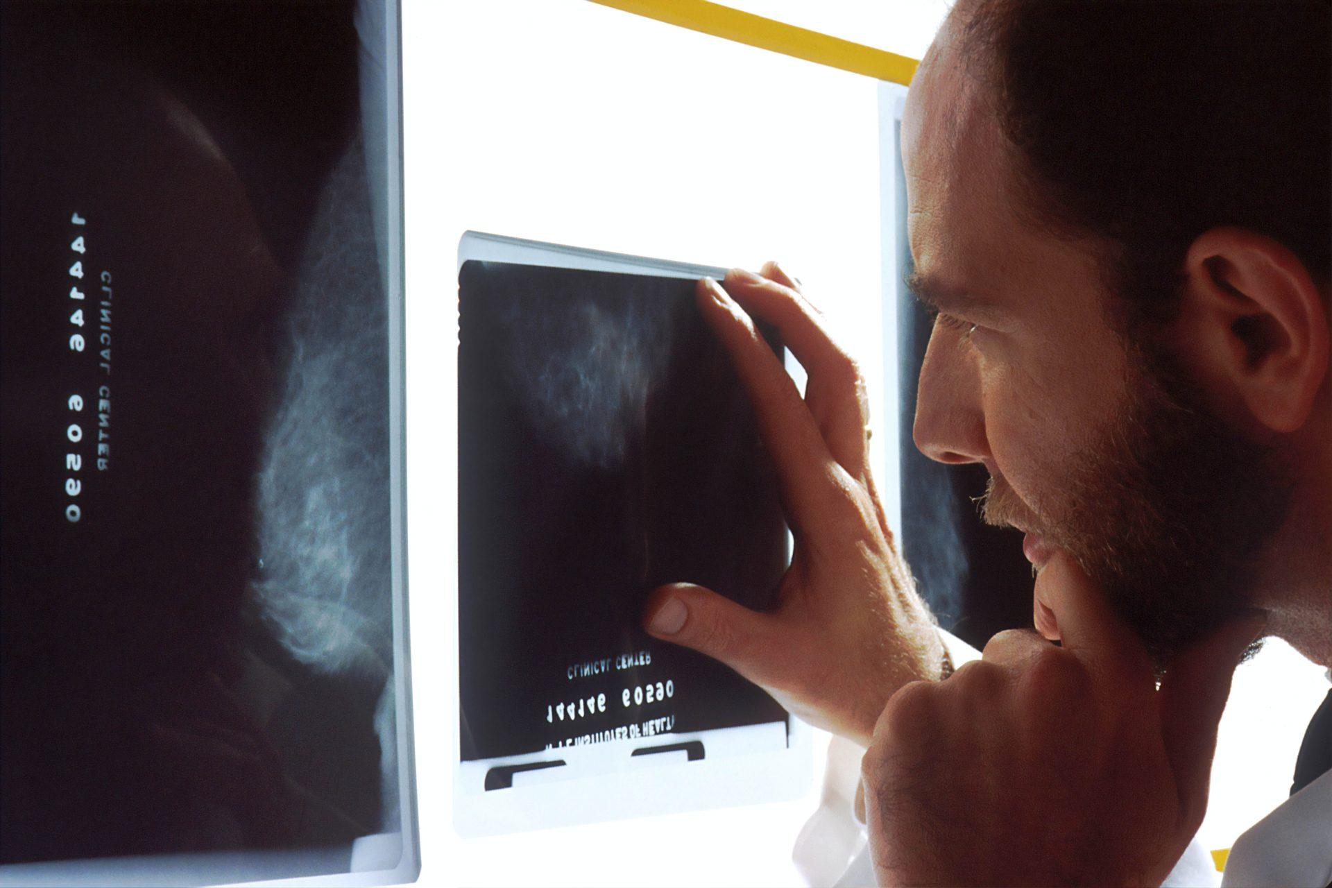 radioloski tehnicar, tehnolog, radiographer